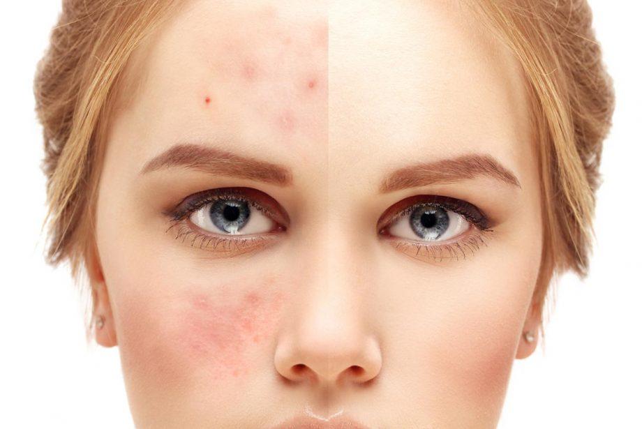 Acne Comparison Face Large