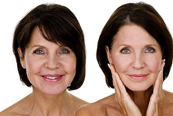 Woman Face Skin Comparison